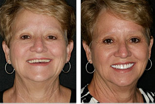 For natural looking dentures in Smithers, BC contact Dr. Dan Kinkela